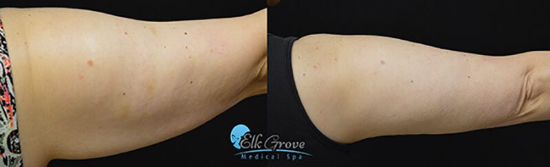 Before and after Coolsculpting treatment on the arms