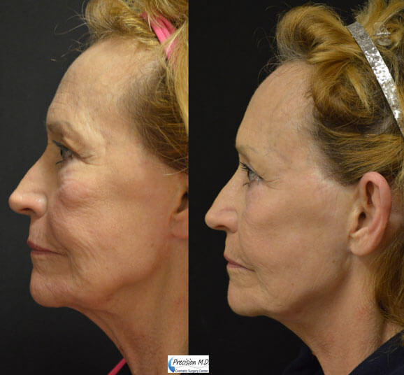 Nova Thread Lift Before and After Results 2