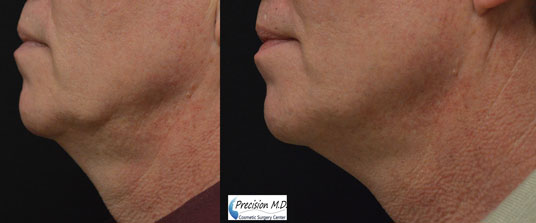 Nova Thread Lift Before and After Results 3