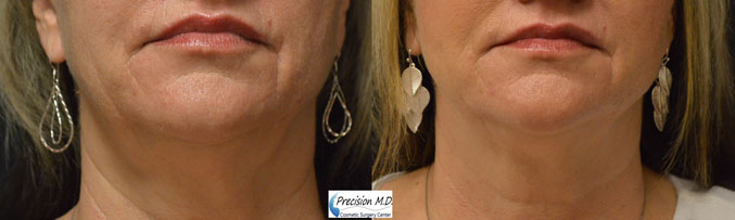 Nova Thread Lift Before and After Results 4